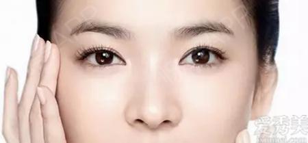 寧波薇琳醫療美容醫院是正規醫院嗎:影響開眼角術效果的因素