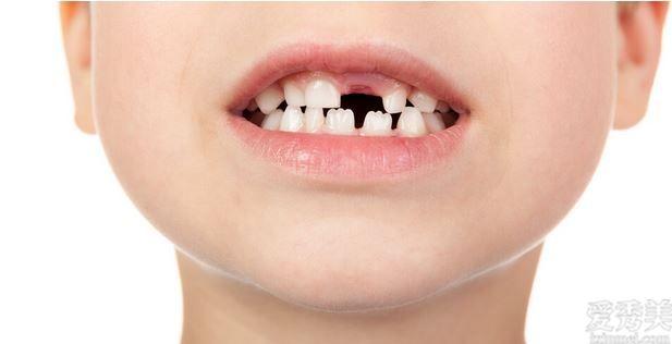 月子期間牙裂開原先全是懷孕期搞的鬼
