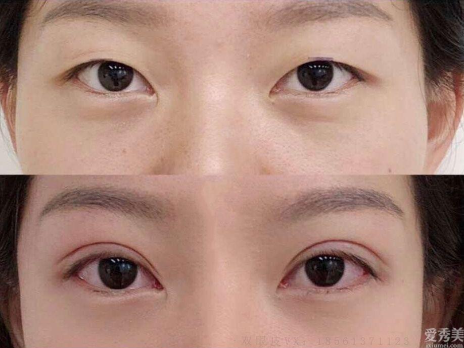 青島哪個醫院做雙眼皮最好