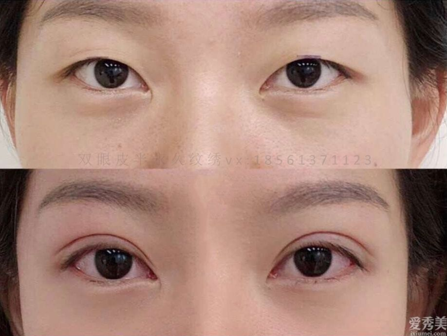 青島哪傢雙眼皮做得好