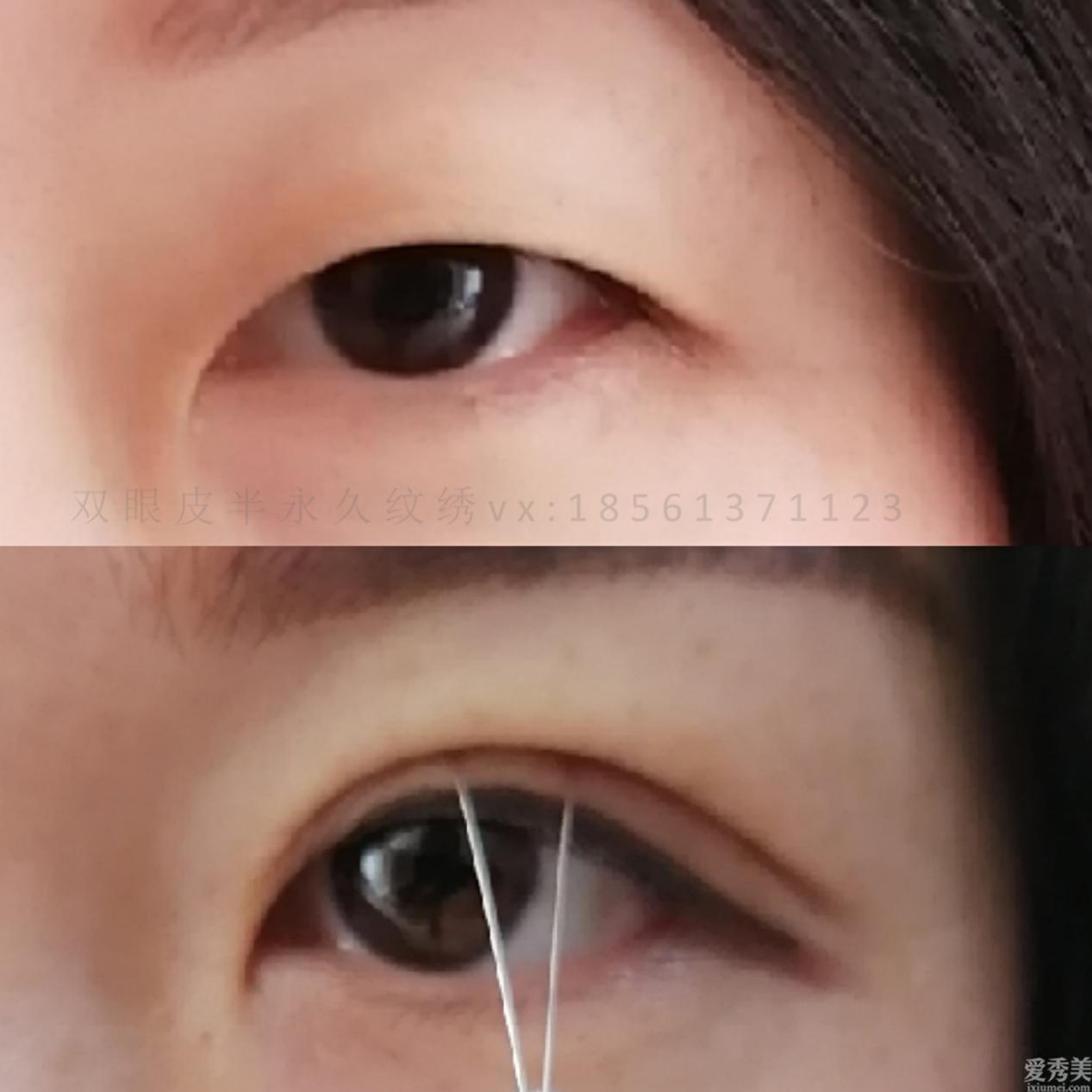 青島雙眼皮著名醫生