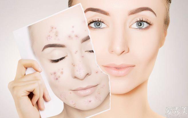 為什麼你的肌膚會出現很多難點,是因為你沒把握的肌膚屏障損壞瞭