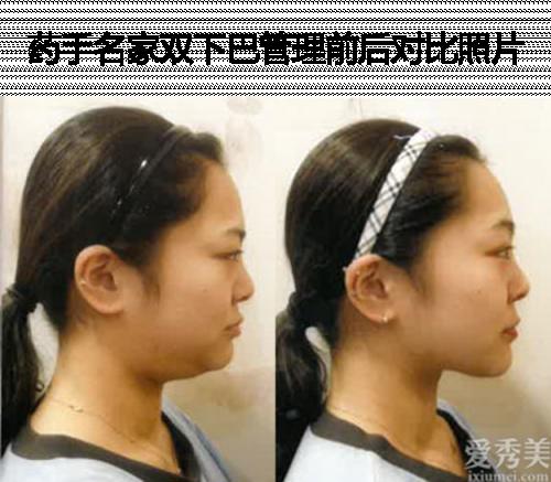 不需開刀的臉型矯正,小臉管理,皮膚管理輕松搞定