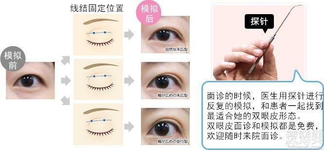 """聖心醫療美容雙眼皮術:疫情期間,人人都是""""眼""""技派"""