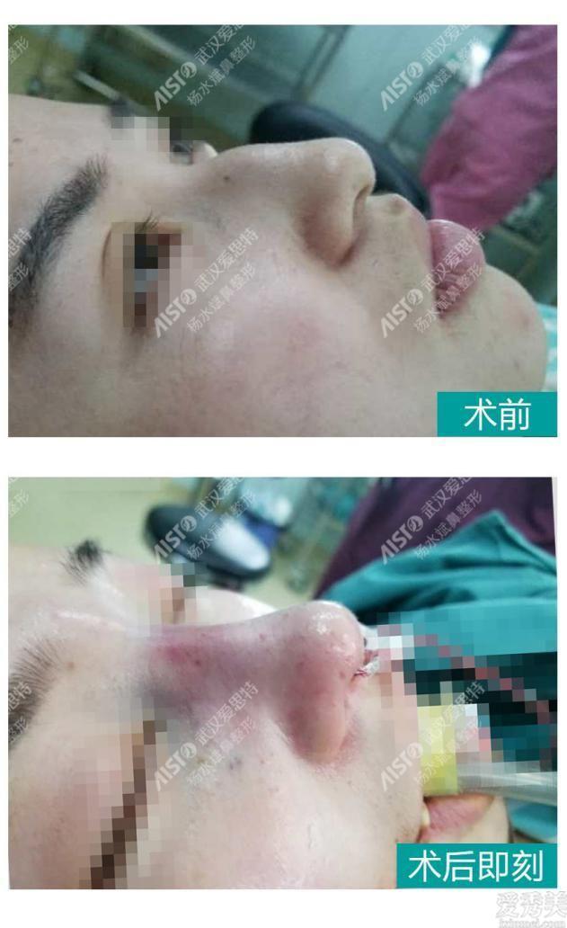 武漢楊水斌做鼻子好嗎?我想看看大鼻頭矯正可以嗎?