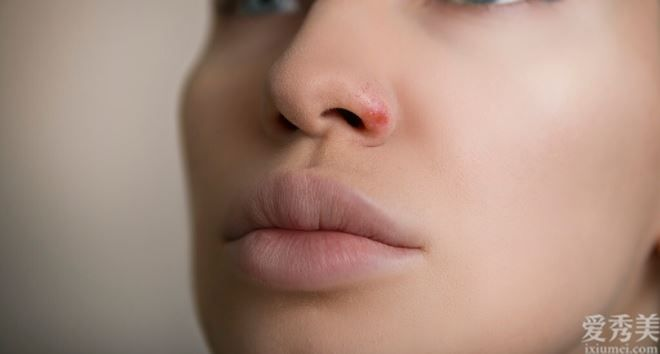 嘴唇的色調,管理決策著你的身心健康,易上火、內分泌失調都可以看出來
