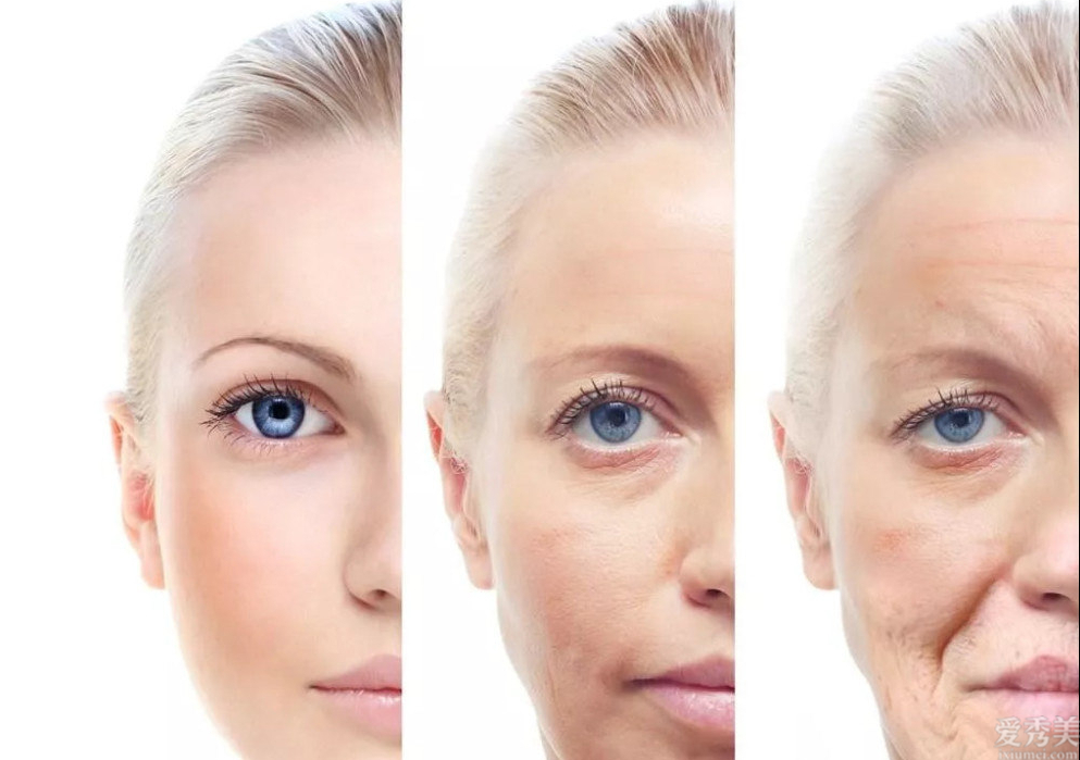 臉上有這4個變化表明女人老瞭,要立即維護保養