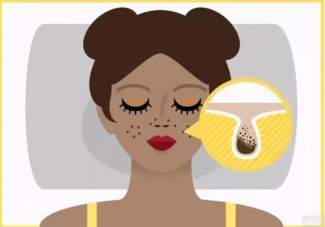 夜裡擦抹護膚品是否會阻塞毛孔?怎麼化妝才不卡粉